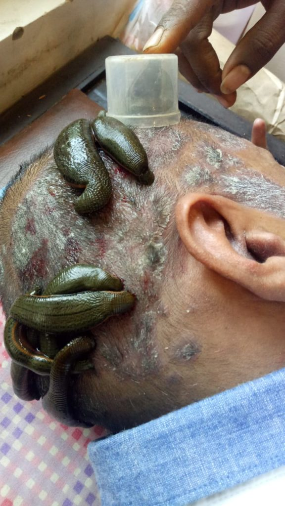 Leech therapy for severe scalp psoriasis