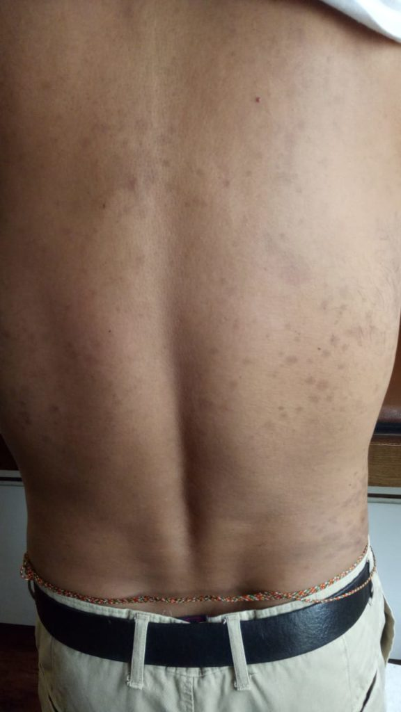 Psoriasis after treatment